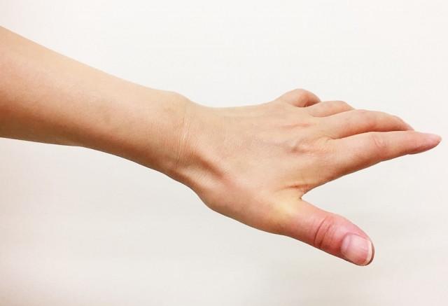 バネ指とは?