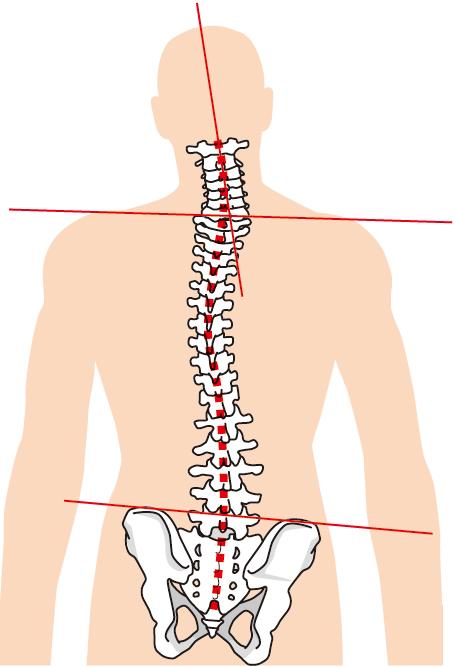 背骨の歪みは自律神経にアプローチできます。