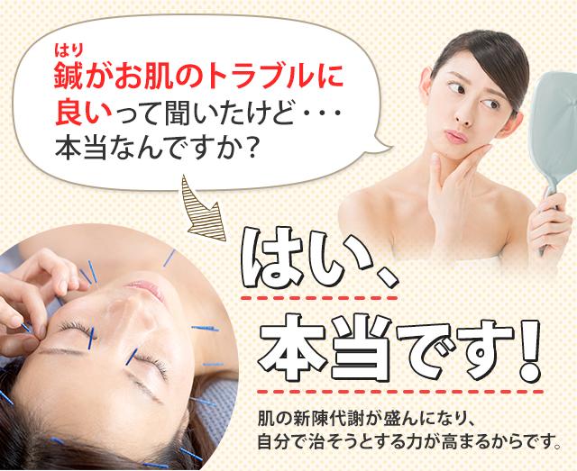 鍼(はり)がお肌のトラブルに良いって聞いたけど、 本当なんですか?はい、本当です! 肌の新陳代謝が盛んになり、自分で治そうとする力が高まるからです。