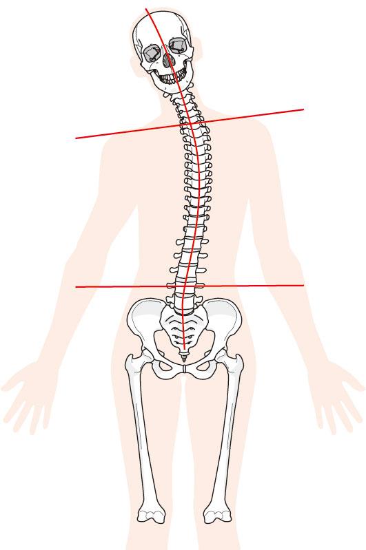 骨盤、背骨のイラスト